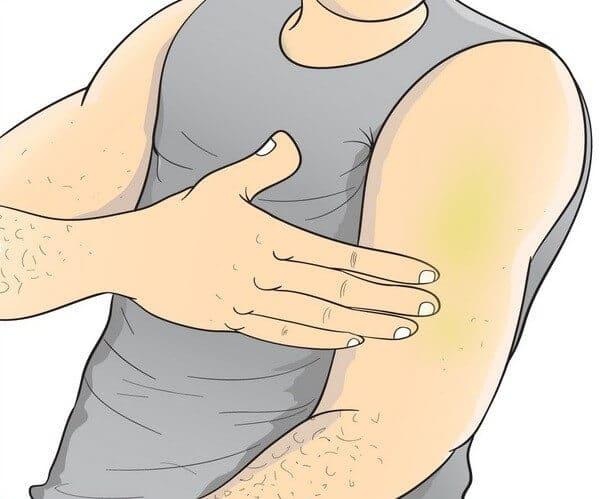 hemp-oil-melanoma