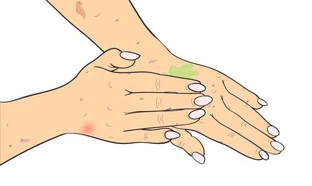 Many Psoriasis sufferers want natural products that can help manage or treat their condition 3